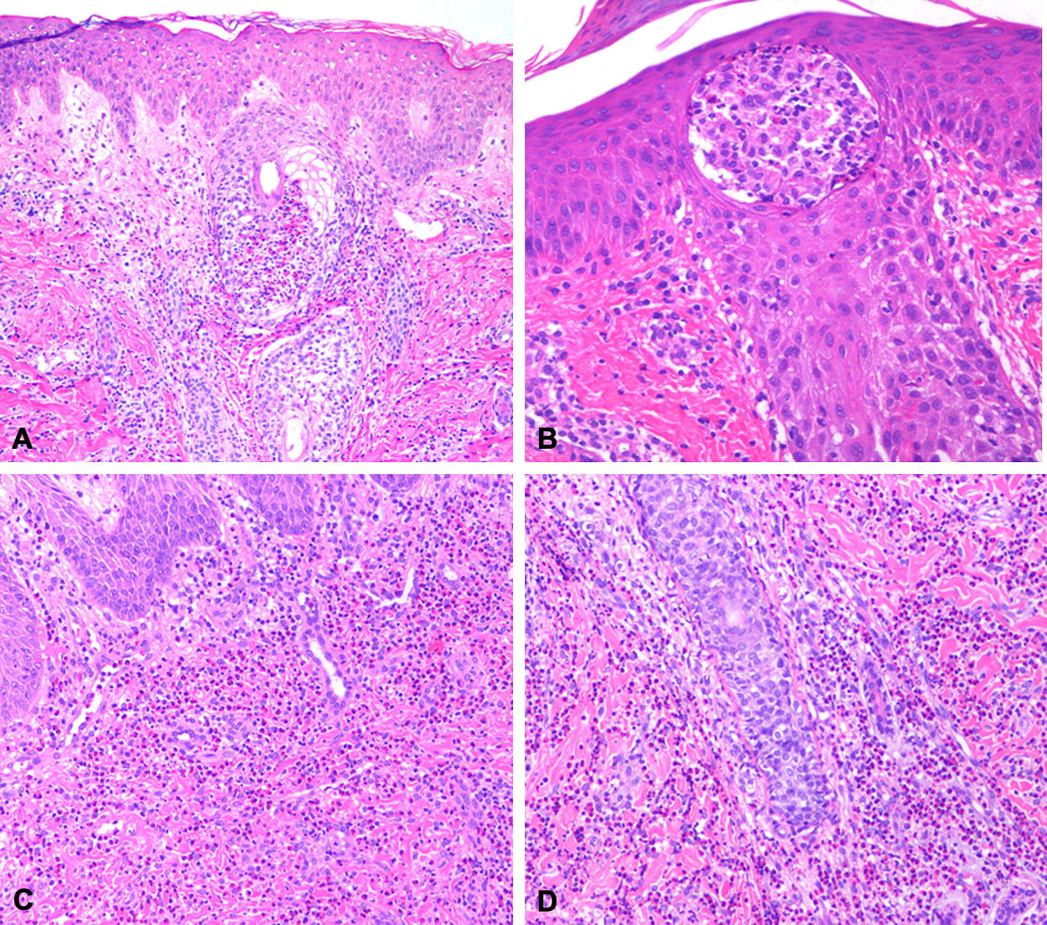 Eosinophilic pustular folliculitis of infancy  A series of 15 cases    Eosinophilic Folliculitis Of Infancy