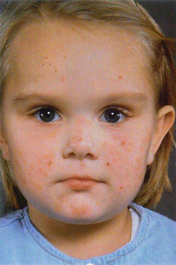 People With Porphyria | www.imgkid.com - The Image Kid Has It!