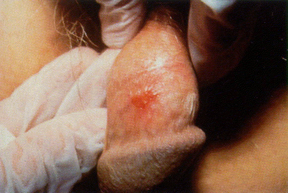 gallery for gt early penile carcinoma