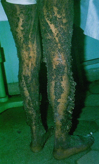 gigantic ichthyosis hystrix journal of the american