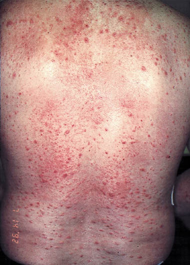 Adult-onset recalcitrant eczema: A marker of noncutaneous ...