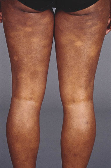 Hypopigmented Mycosis Fungoides Treatment And A 6 189 Year