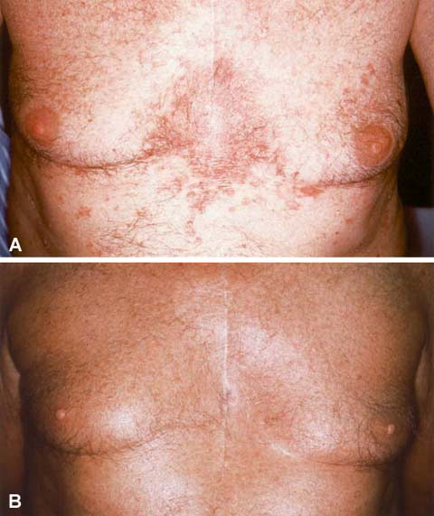 Farr PM (1994) Calcipotriol improves the response of psoriasis to PUVA 2