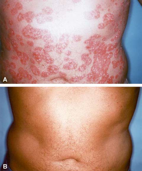 Key Words: psoriasis, corticosteroid, methotrexate, cyclosporine, photochemotherapy, topical cyclosporin 3