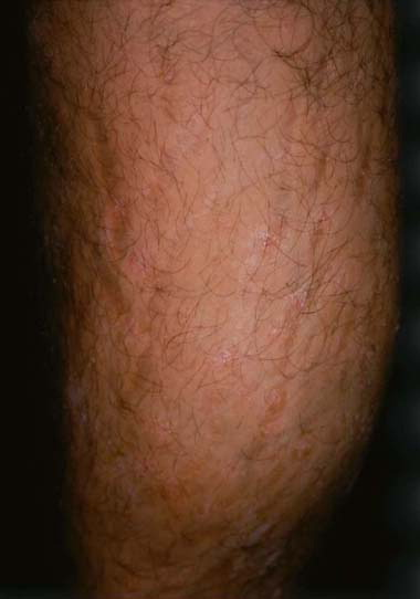 Controlled study of PUVA and adjunctive topical therapy in the management of psoriasis 1
