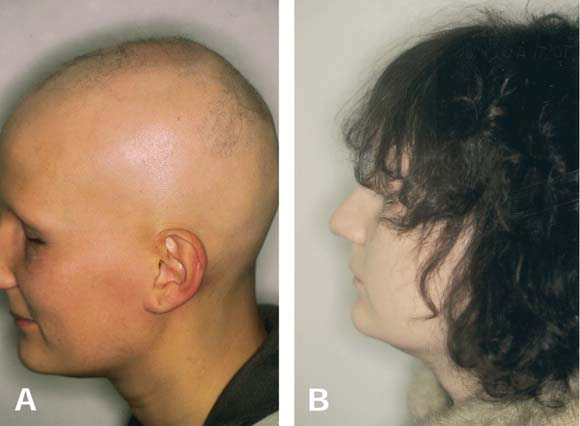 topical steroids for scalp