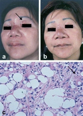 Silicone Granuloma Of The Face Treated With Minocycline