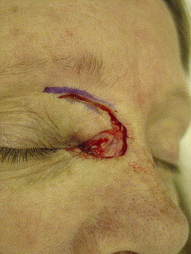 Upper Eyelid Rotation Flap For Reconstruction Of Medial