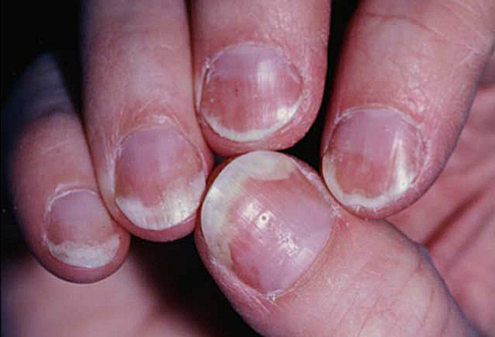 psoriasis of the nail  anatomy  pathology  clinical