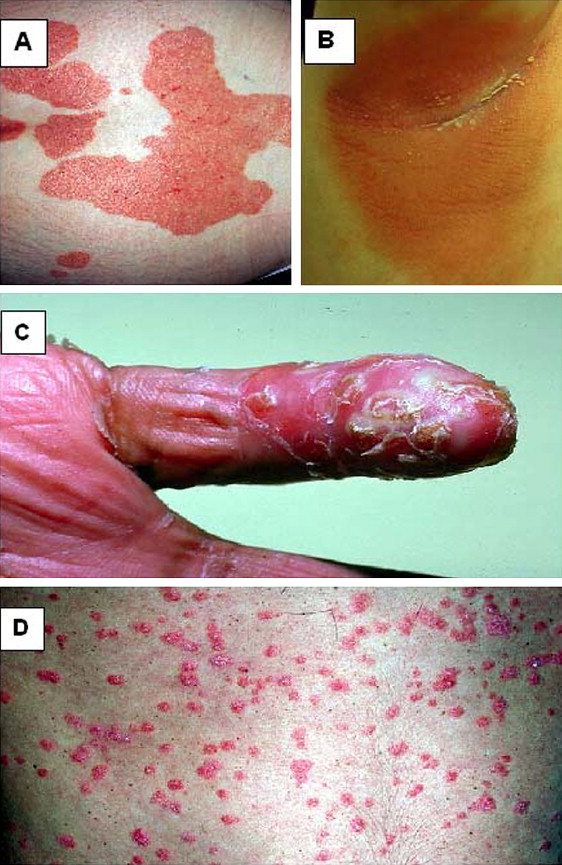 Cutaneous lesions characteristic of psoriasis vulgaris can be present before, during, or after an acute pustular episode 2