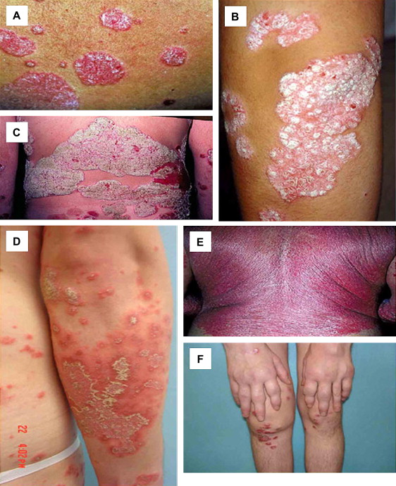 Palmoplantar psoriasis: a phenotypical and clinical review with introduction of a new quality-of-life assessment tool 1