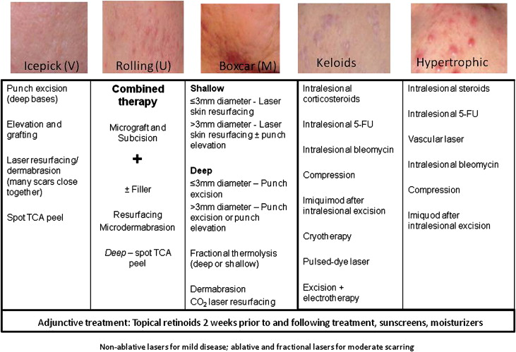 New insights into the management of acne: An update from