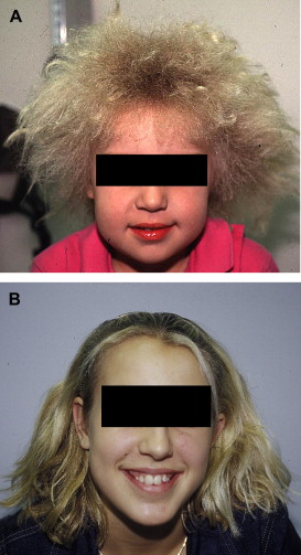 Acne In Hair >> Uncombable hair syndrome - Journal of the American Academy of Dermatology