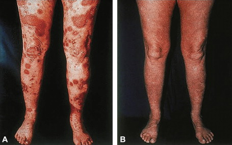 References Alan Menter, MD Psoriasis Research Unit, Baylor Research Institute 3900 3