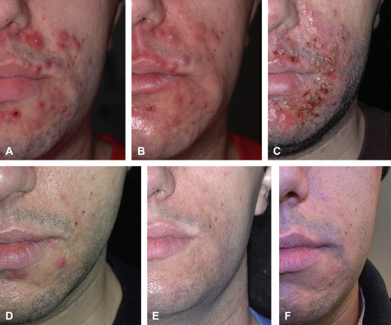 journal article on acne