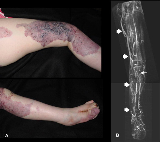 Diagnosis And Management Of Extensive Vascular