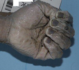 Forensics In Dermatology Part I Journal Of The American