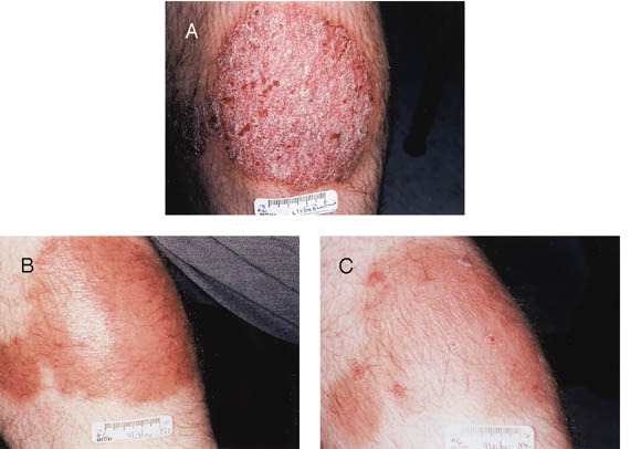 Journal of Drugs in Dermatology:  A Review of Protocols for 308 nm Excimer Laser Phototherapy in Psoriasis 2