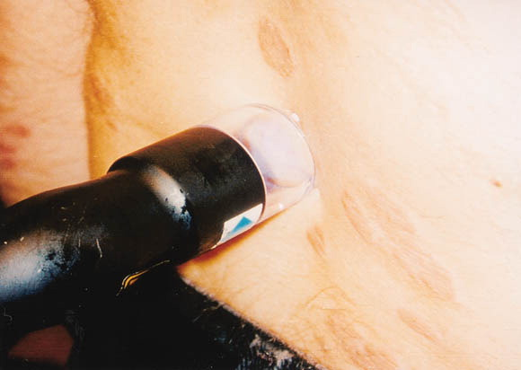 308-nm excimer laser therapy for psoriasis 2