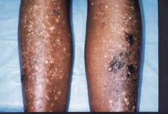 Squamous cell carcinoma of the legs in African Americans ...
