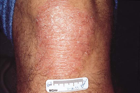 First Study: Treatment of Generalized Psoriasis with Excimer Laser 2