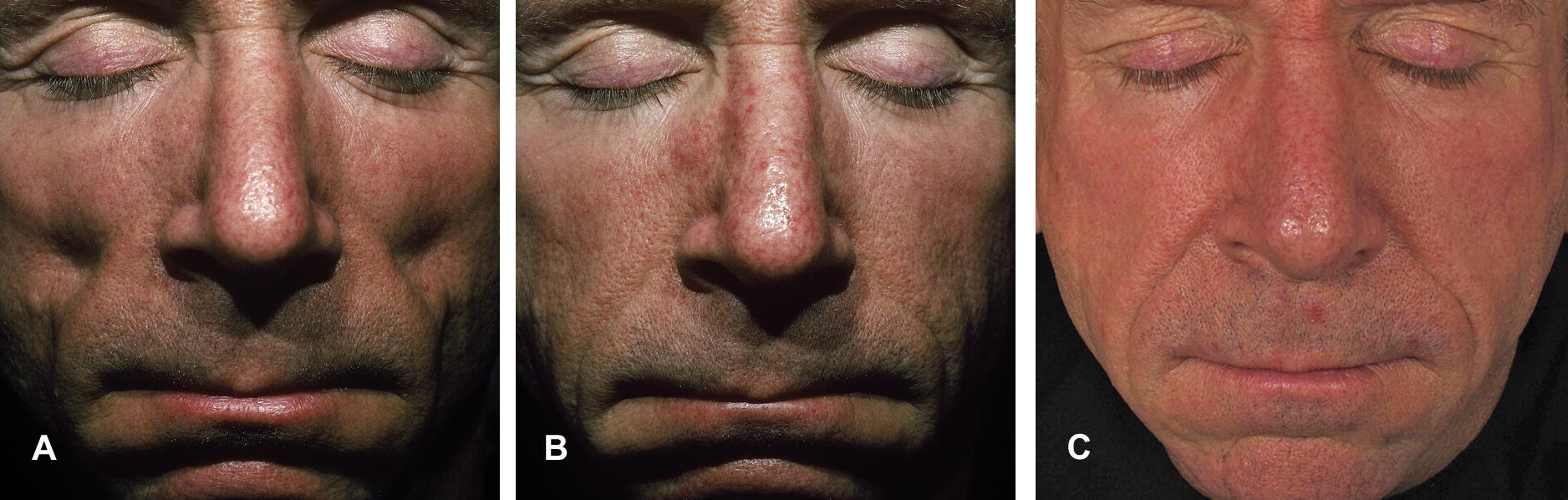 Lipoatrophy of facial