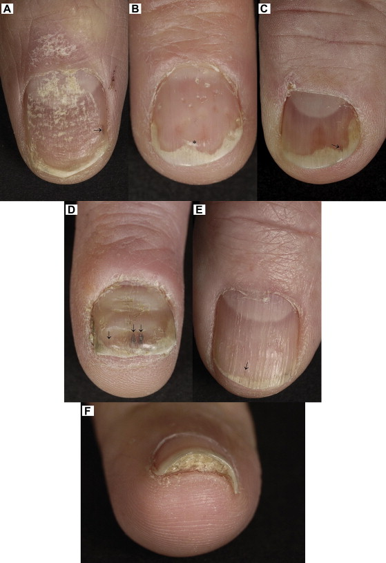 Psoriasis can change the nail bed as the results in onycholysis, discoloration, splinter hemorrhage and subungual hyperkeratosis 1