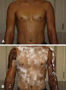 Acquired idiopathic anhidrosis: A diagnosis often missed ...