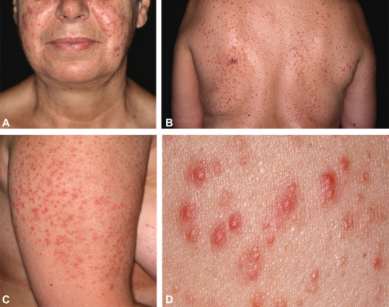 Miliary And Agminated Type Primary Cutaneous Follicle